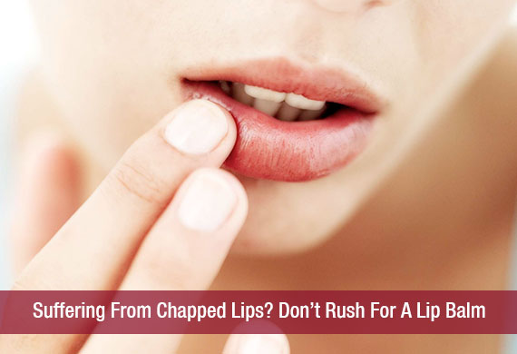 Suffering From Chapped Lips? Don't Rush For A Lip Balm