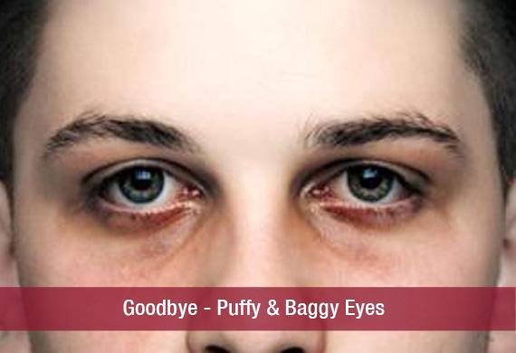 Goodbye – Puffy & Baggy Eyes