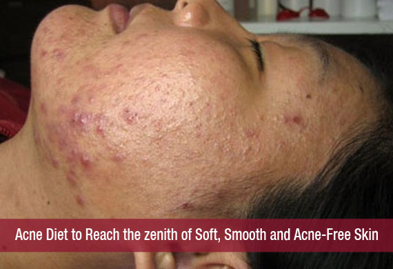 Acne Diet to Reach the zenith of Soft, Smooth and Acne-Free Skin