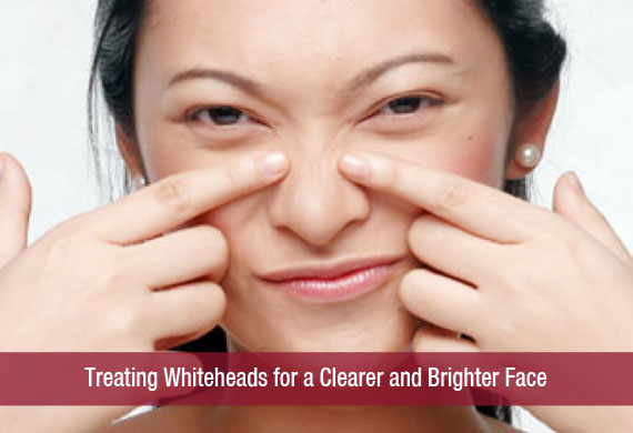 Treating Whiteheads for a Clearer and Brighter Face