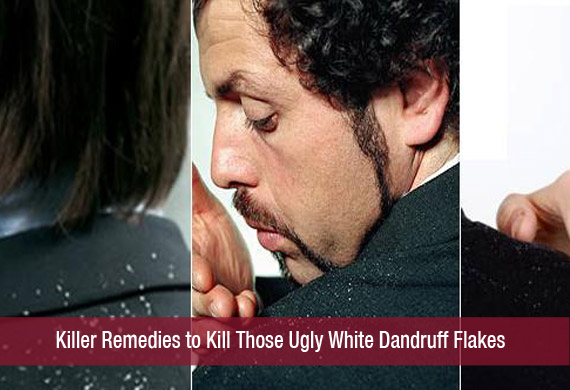 Killer Remedies to Kill Those Ugly White Dandruff Flakes