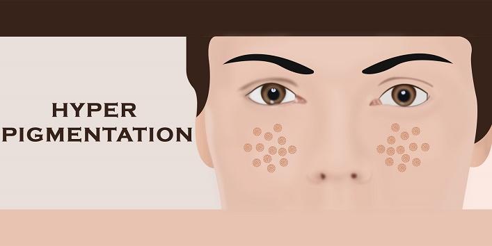 hyper-pigmentation