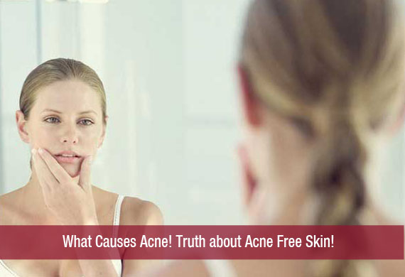 What Causes Acne?! Truth about Acne Free Skin!
