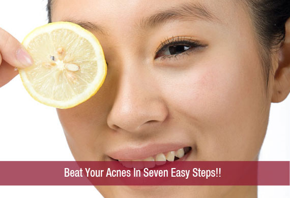 Beat Your Acnes In Seven Easy Steps!!
