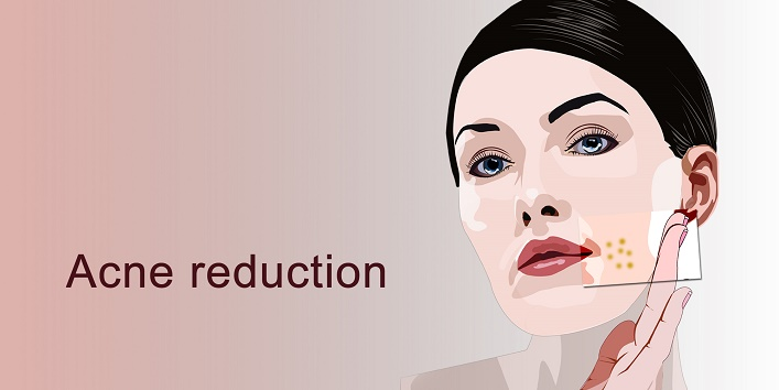 4-acne-reduction