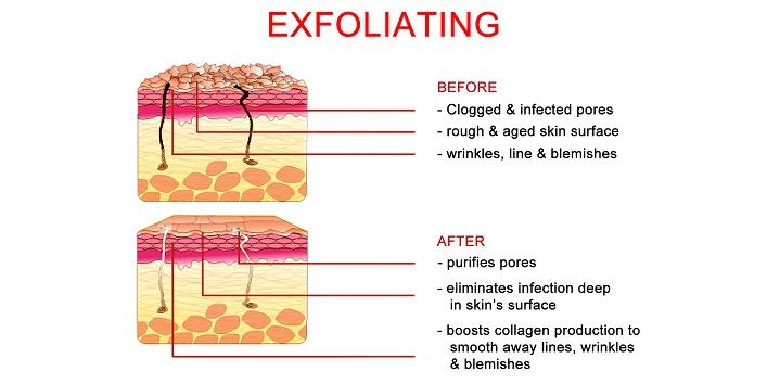 5-exofoliates