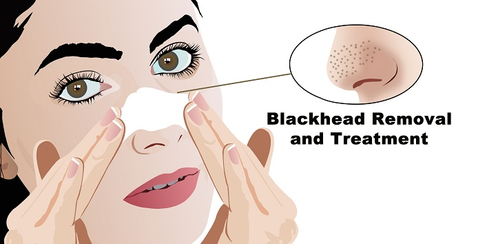 8-blackhead-removal-and-treatment