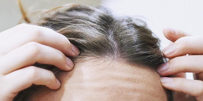 Plucking Grey Hair 4
