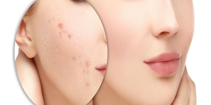 Remove  Acne Scars1