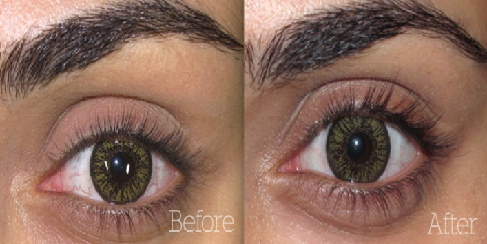 Benefits of Castor Oil for Eyes 4