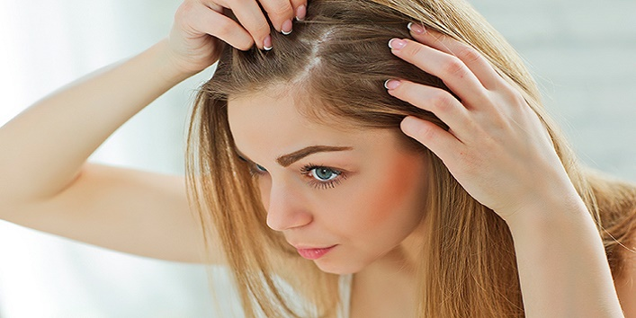 Natural Ways To Prevent Hereditary Hair Loss