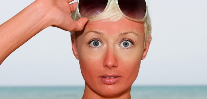 Home Remedies To Cure Sun Bruised Skin During Summers