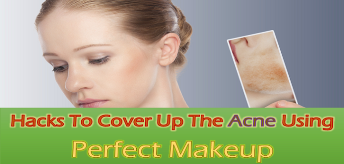 10 Genius Hacks To Cover Up The Acne Using Perfect Makeup