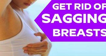 sagging breasts