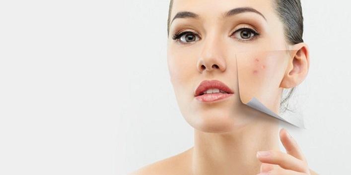 Treat face spots