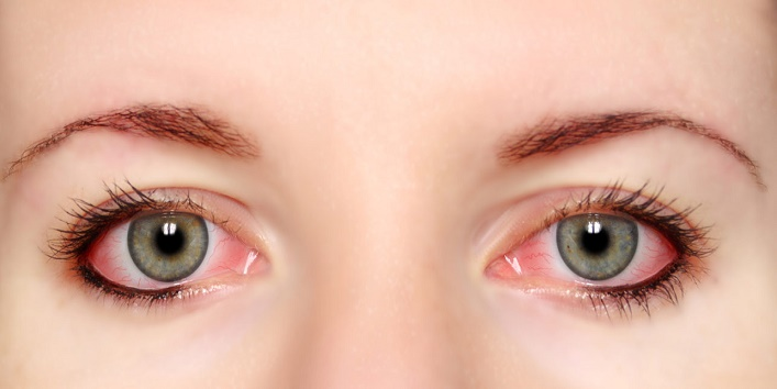 Avoid-Irritation-Of-The-Eyes
