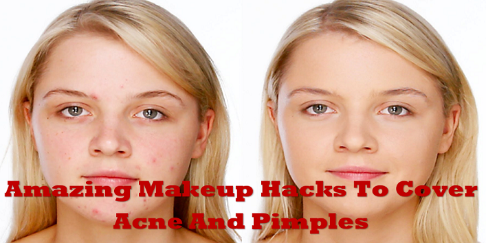 Amazing-Makeup-Hacks-To-Cover-Acne-And-Pimples-cover-2