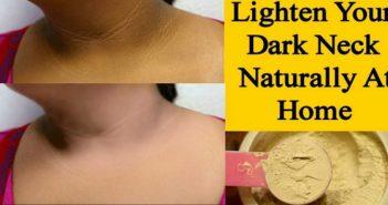 dark neck