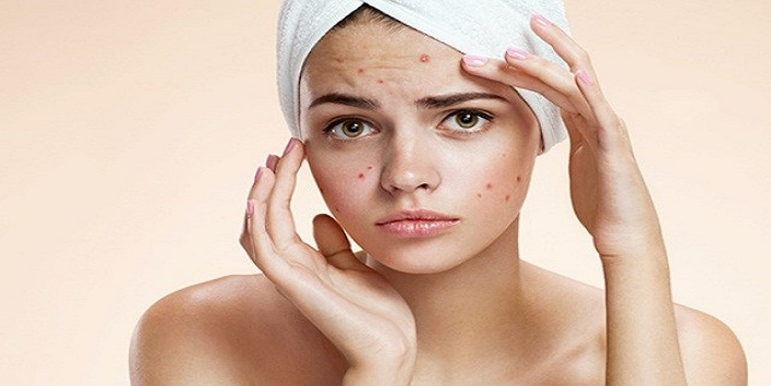 Combats-acne
