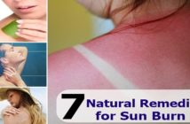 Natural-Remedies-to-Treat-Sunburn-at-Home-cover