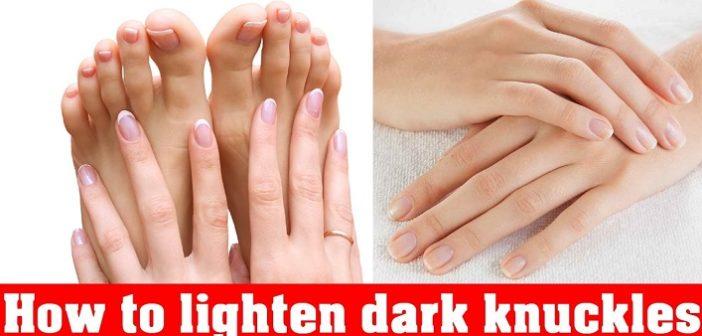 8 Effective Home Remedies to Lighten Dark Knuckles Naturally