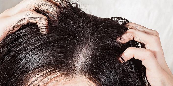 Provides nourishment to the dry scalp