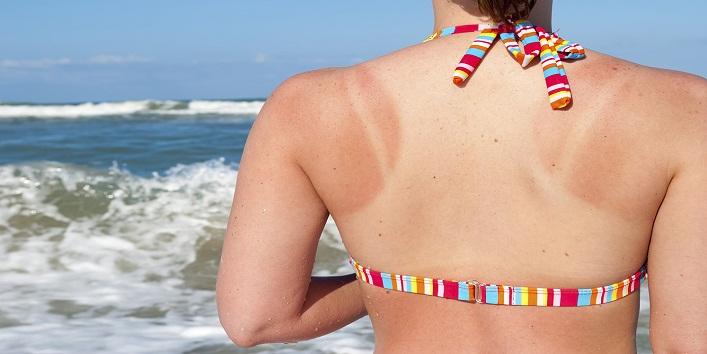 Sunburned woman at beach